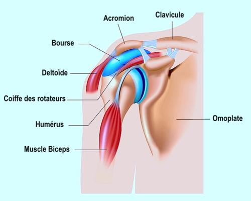 tendinite calcifiante épaule